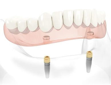 The Apparent High Cost of Implant Dentures